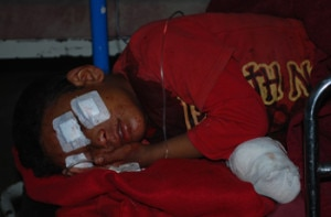 Injured Sameer receiving  treatment at a hospital in Capital. photo:NMF