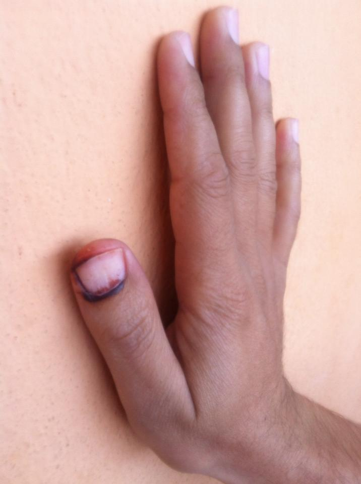 voteing-thumb